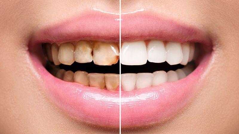 Люминиры для зубов