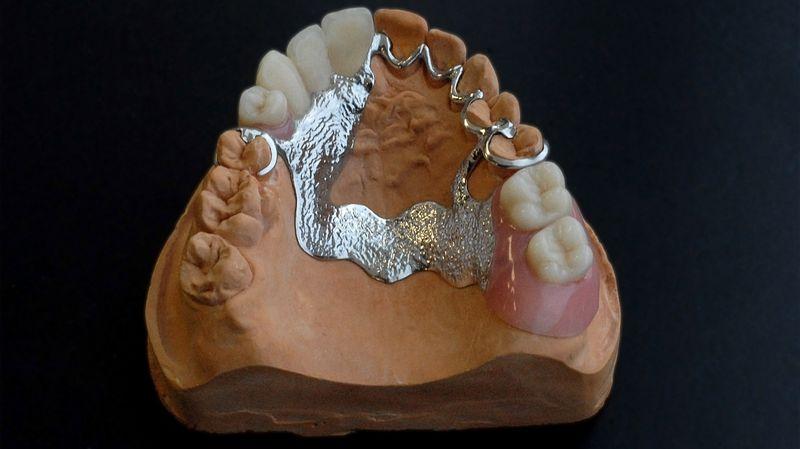 Бюгельные протезы для зубов