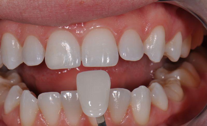 Зубные люминиры