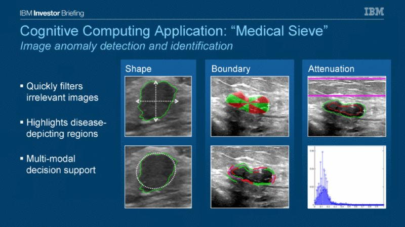 IBM Medical Sieve