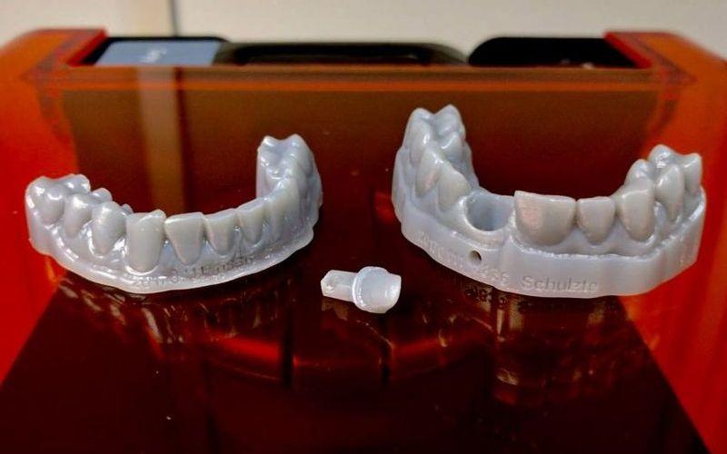 3D печать зубов