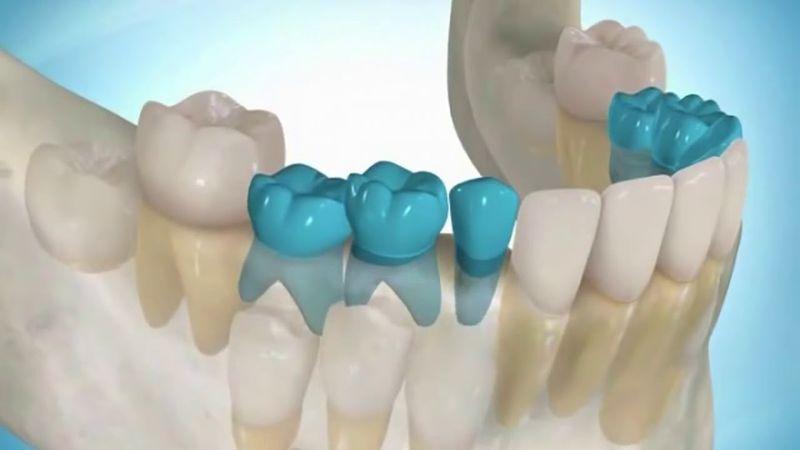 Технология выращивания зубов
