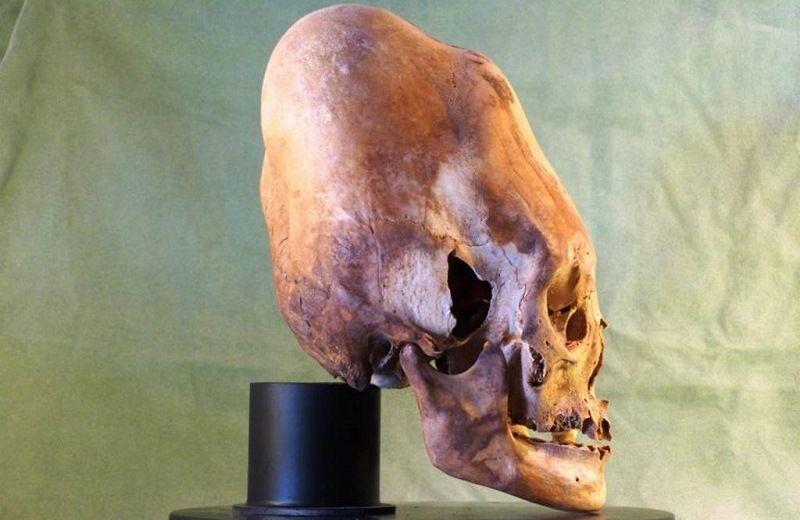 Удлиненные черепа, найденные на Антарктиде