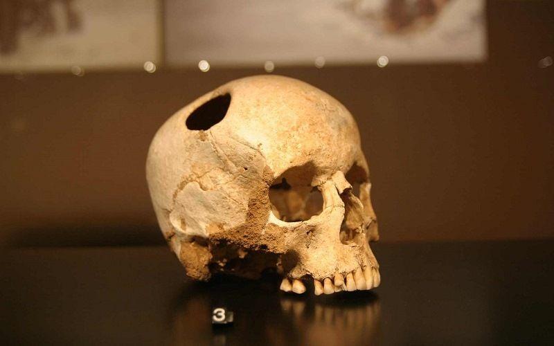 Останки человека с трепанированным черепом