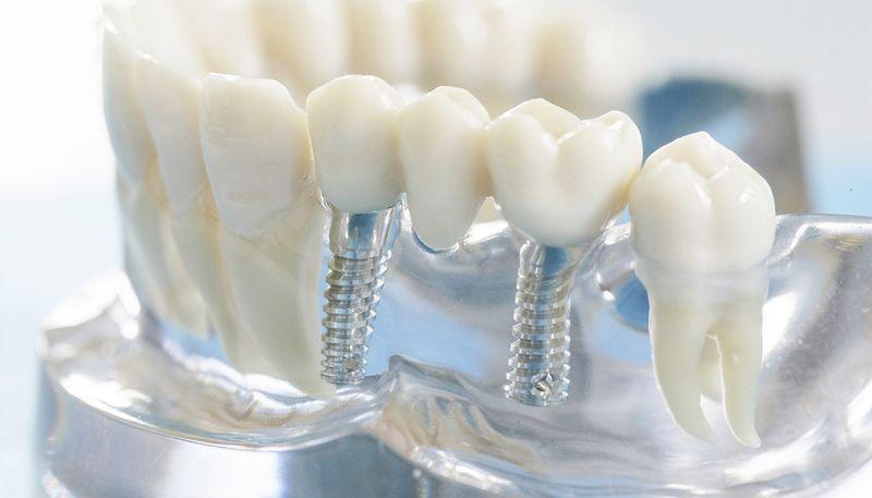 Импланты зубов для одноэтапной формы