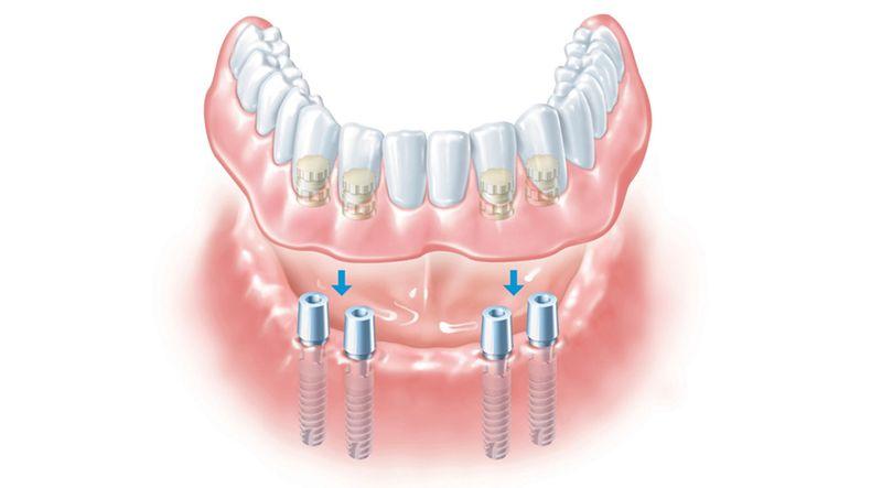 Внутрислизистая форма имплантации