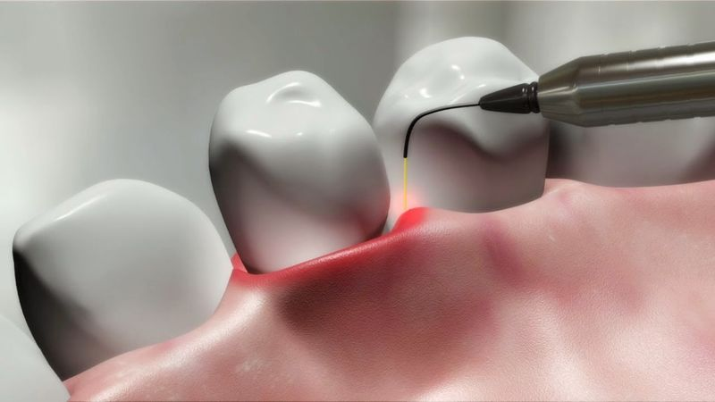 Лазерная методика протезирования