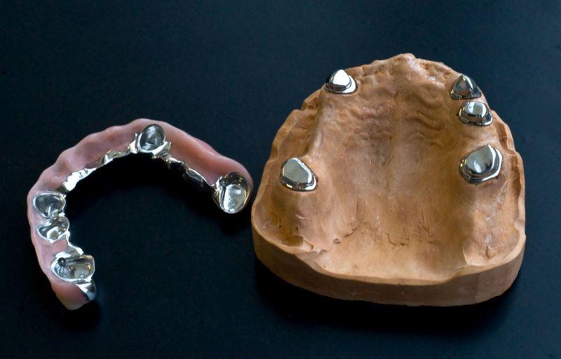 Телескопические протезы