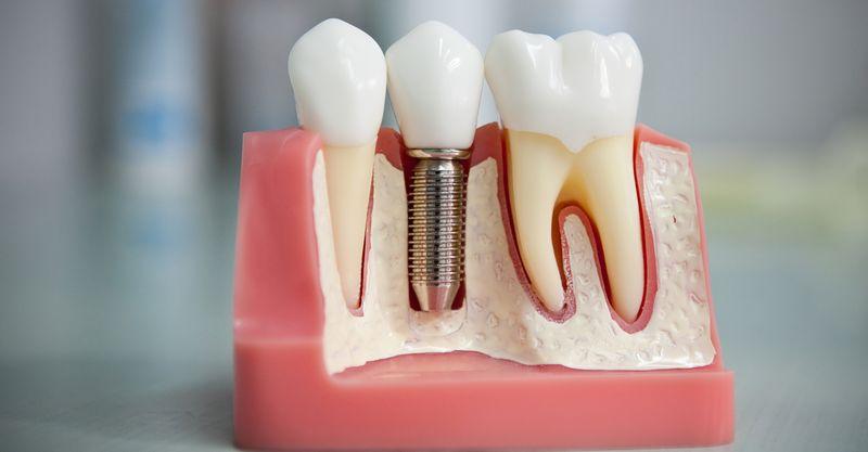 Новые материалы для имплантации зубов