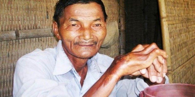 Тхай Нгок не спал 45 лет подряд