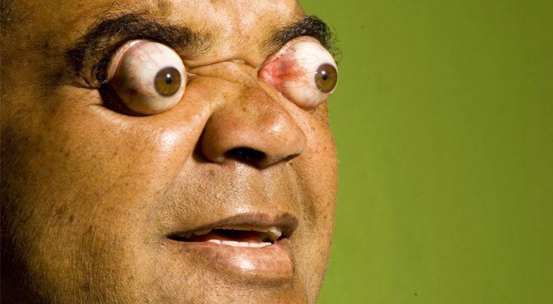 Клаудио Пинто - рекордсмен по выпучиванию глазных яблок