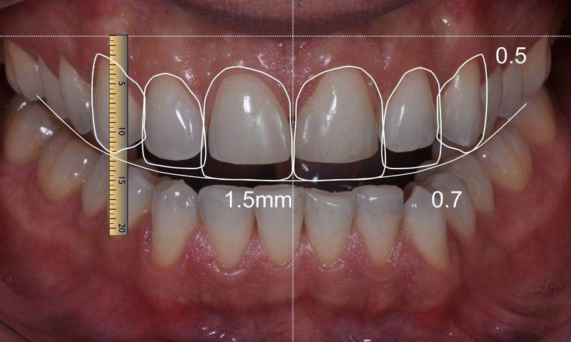 Компьютерное моделирование зубных коронок