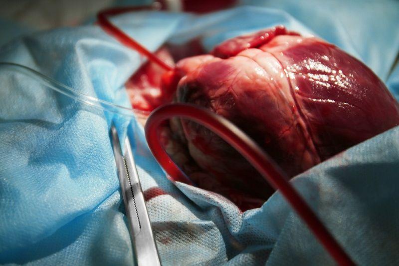 Подсадка второго сердца