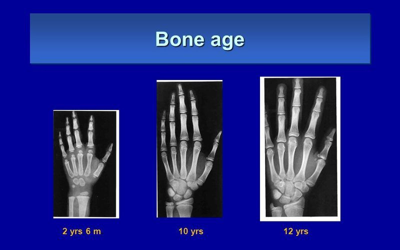 X-Ray Exam: Bone Age Study
