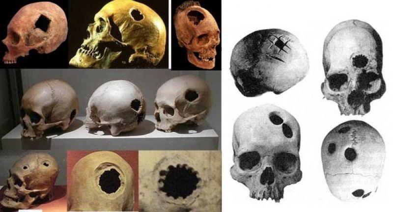 Древний череп со следами трепанации