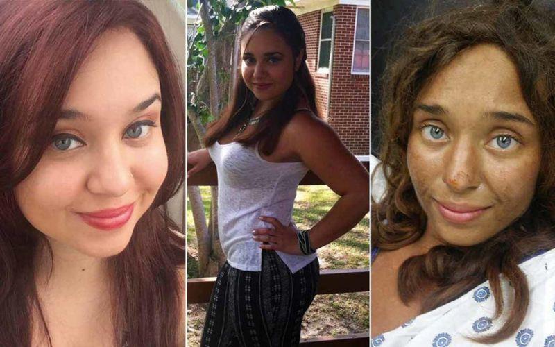 Лиза Терис до и после пропажи